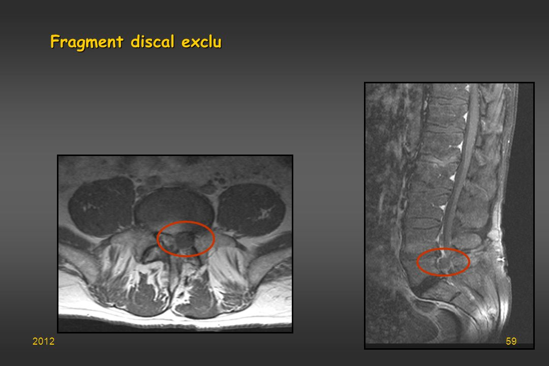 Fragment discal exclu 2012