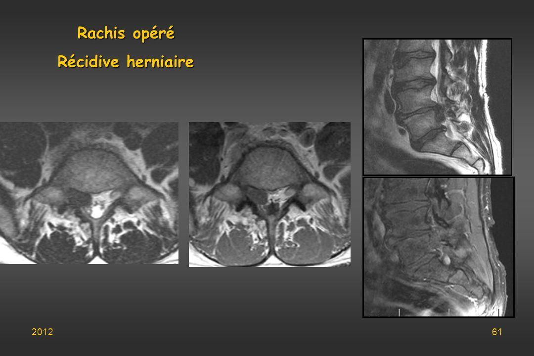 Rachis opéré Récidive herniaire
