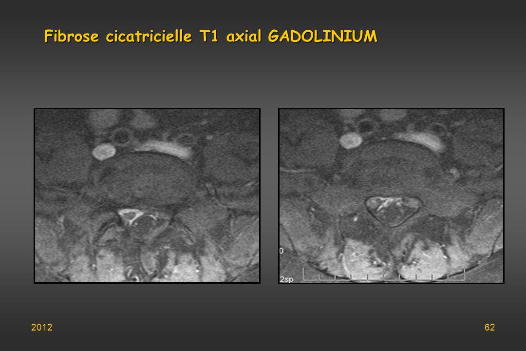 Fibrose cicatricielle T1 axial GADOLINIUM