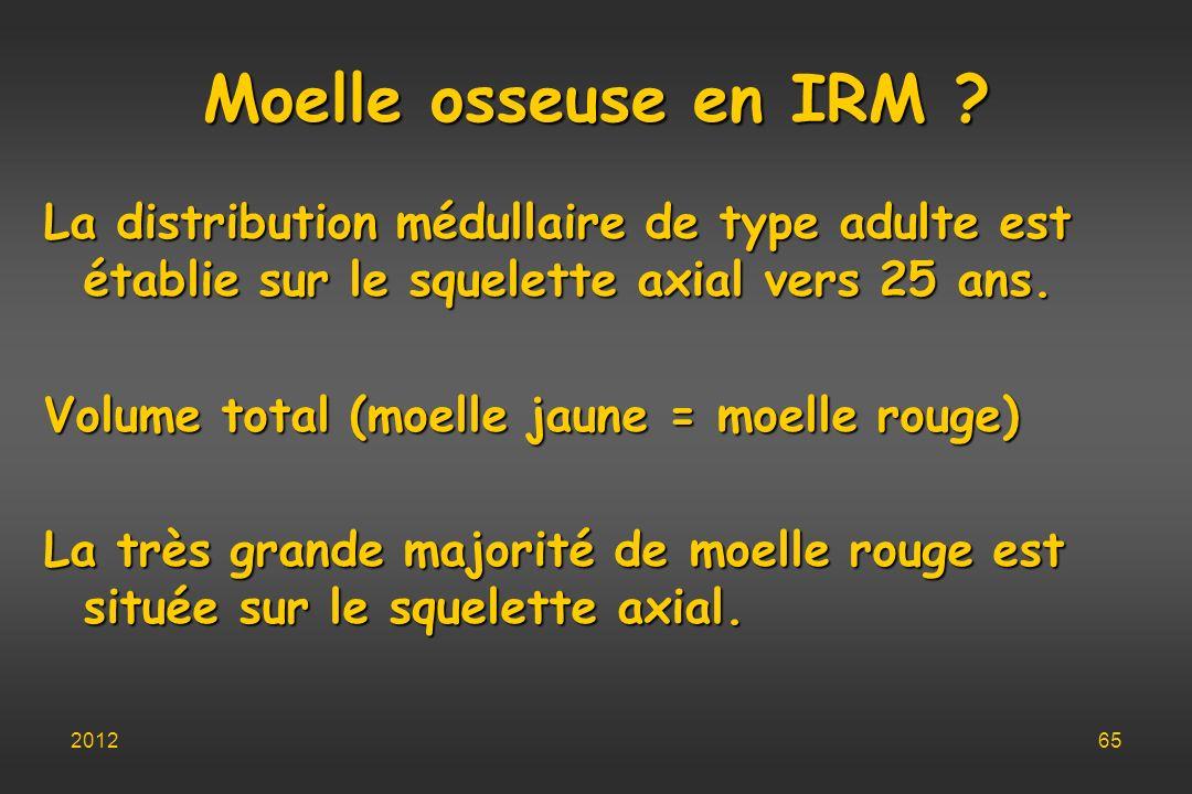 Moelle osseuse en IRM La distribution médullaire de type adulte est établie sur le squelette axial vers 25 ans.