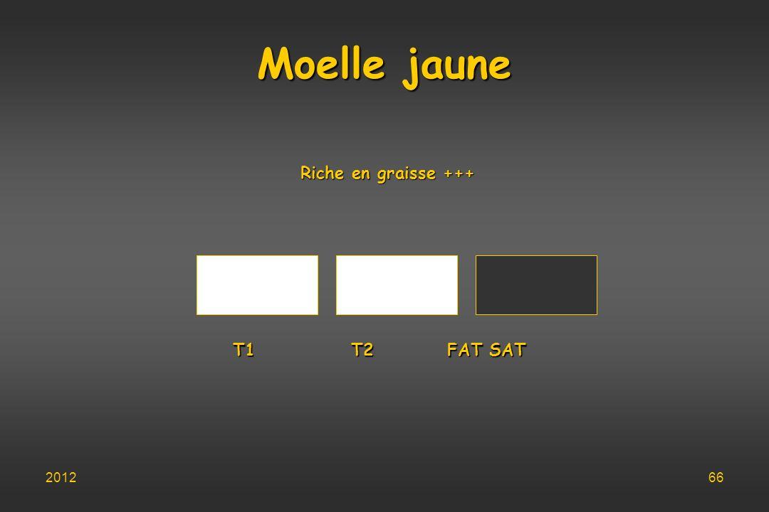 Moelle jaune Riche en graisse +++ T1 T2 FAT SAT 2012