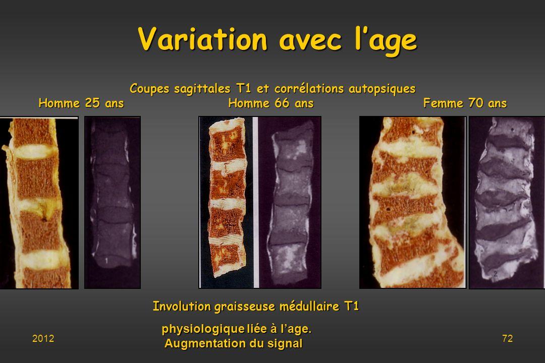 Variation avec l'age Coupes sagittales T1 et corrélations autopsiques