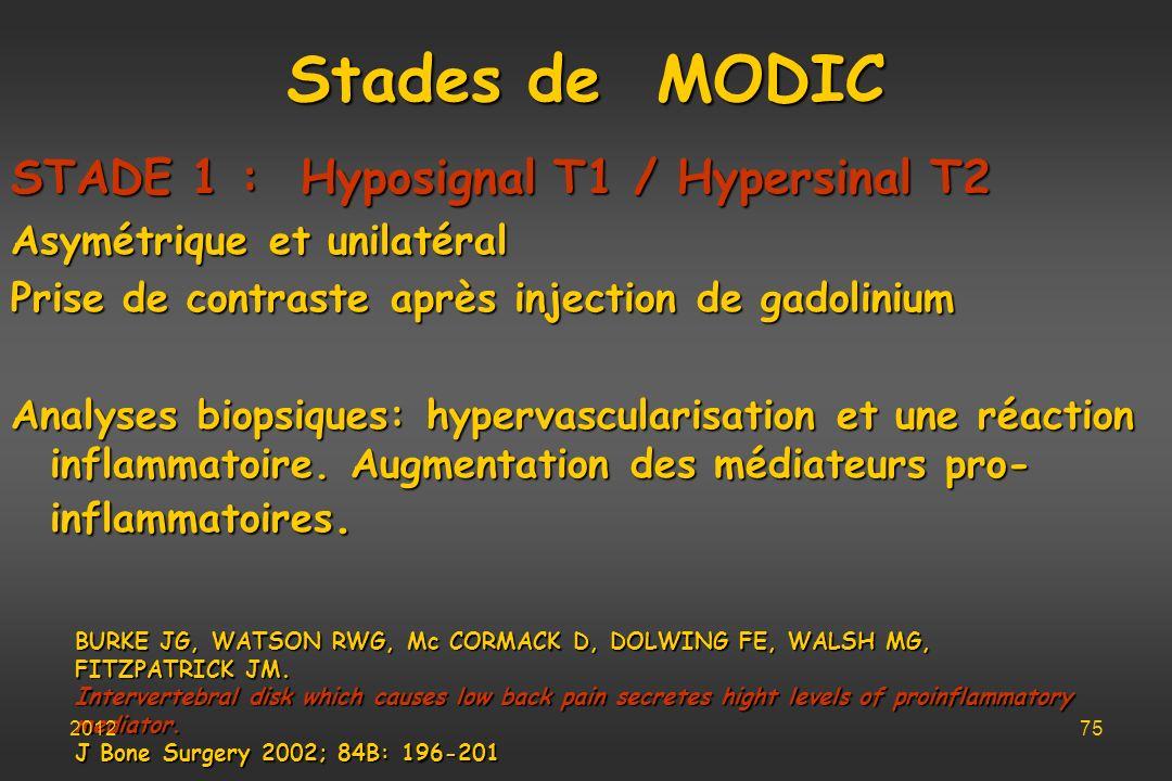 Stades de MODIC STADE 1 : Hyposignal T1 / Hypersinal T2
