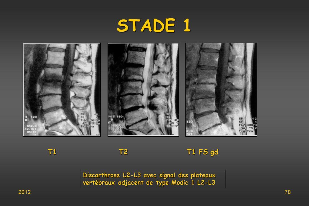 STADE 1 T1 T2 T1 FS gd Discarthrose L2-L3 avec signal des plateaux
