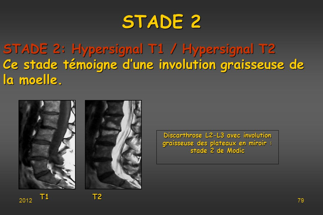 STADE 2 STADE 2: Hypersignal T1 / Hypersignal T2