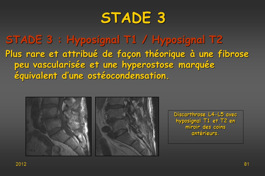 STADE 3 STADE 3 : Hyposignal T1 / Hyposignal T2