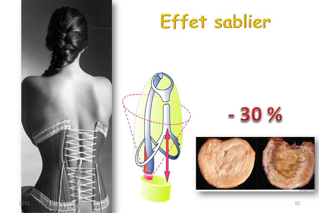 Effet sablier - 30 % 2012