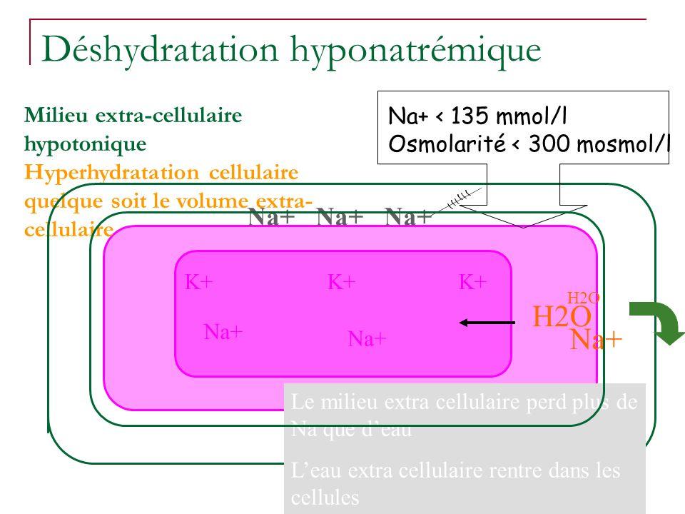 Déshydratation hyponatrémique
