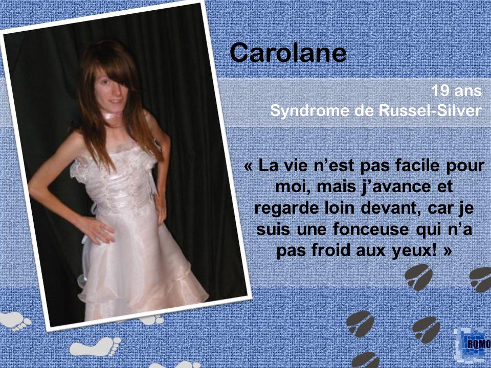 Carolane 19 ans. Syndrome de Russel-Silver.