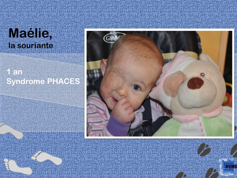 Maélie, la souriante 1 an Syndrome PHACES