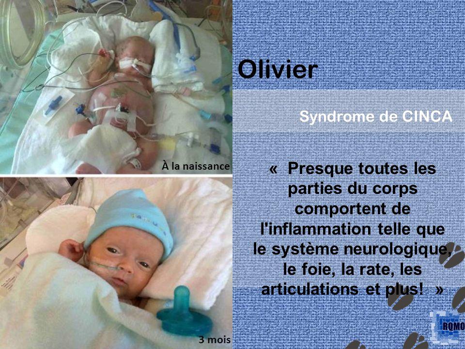 Olivier Syndrome de CINCA. À la naissance.