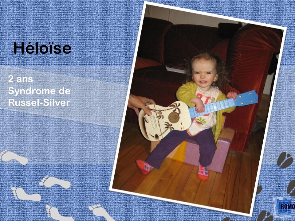 Héloïse 2 ans Syndrome de Russel-Silver