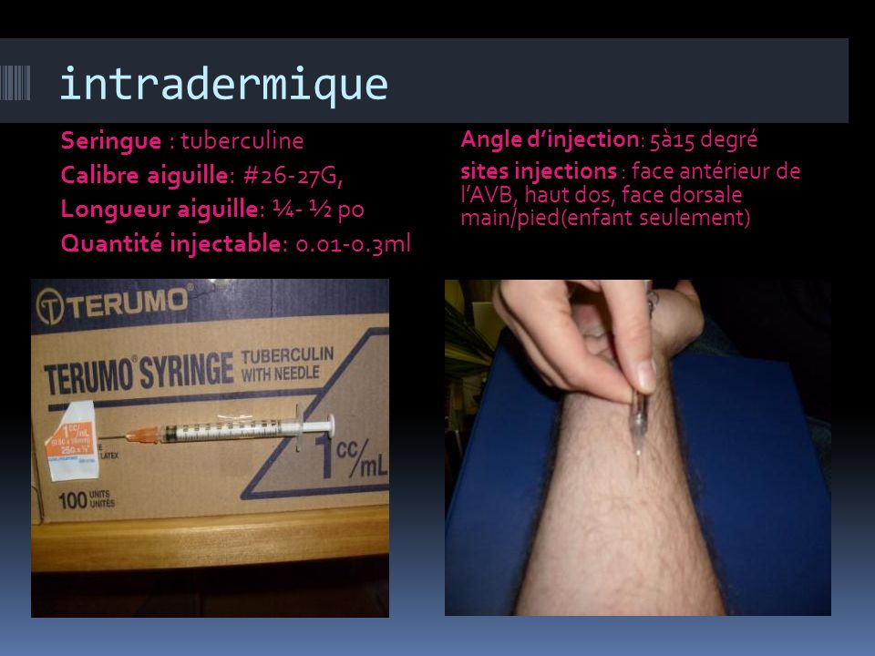 intradermique Seringue : tuberculine Calibre aiguille: #26-27G,