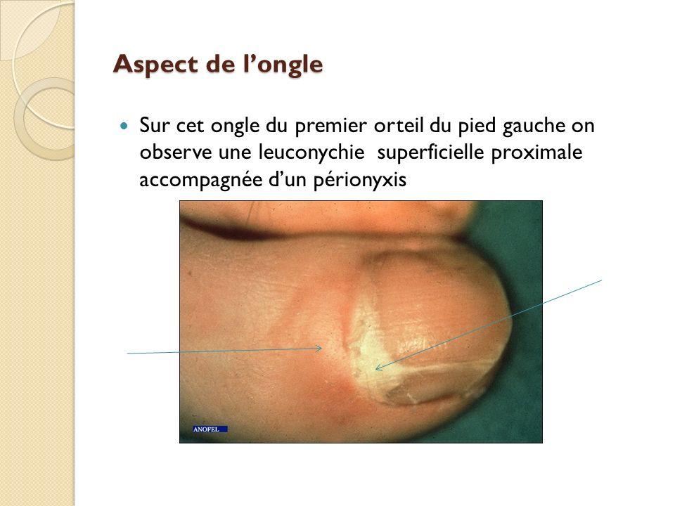 Aspect de l'ongle Sur cet ongle du premier orteil du pied gauche on observe une leuconychie superficielle proximale accompagnée d'un périonyxis.