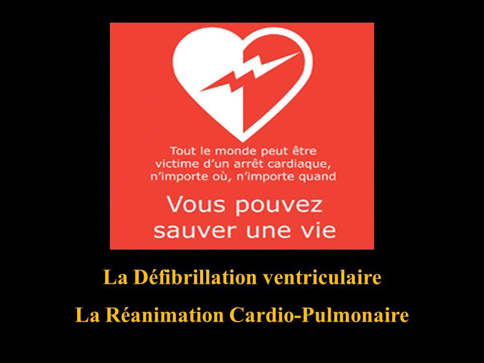 La Défibrillation ventriculaire La Réanimation Cardio-Pulmonaire