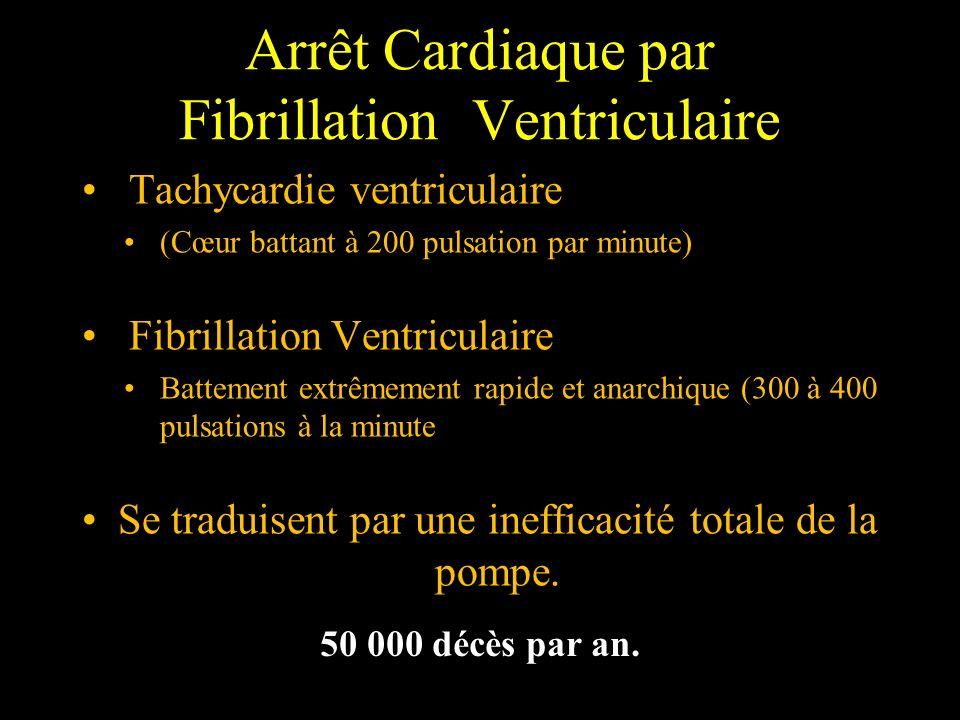 Arrêt Cardiaque par Fibrillation Ventriculaire