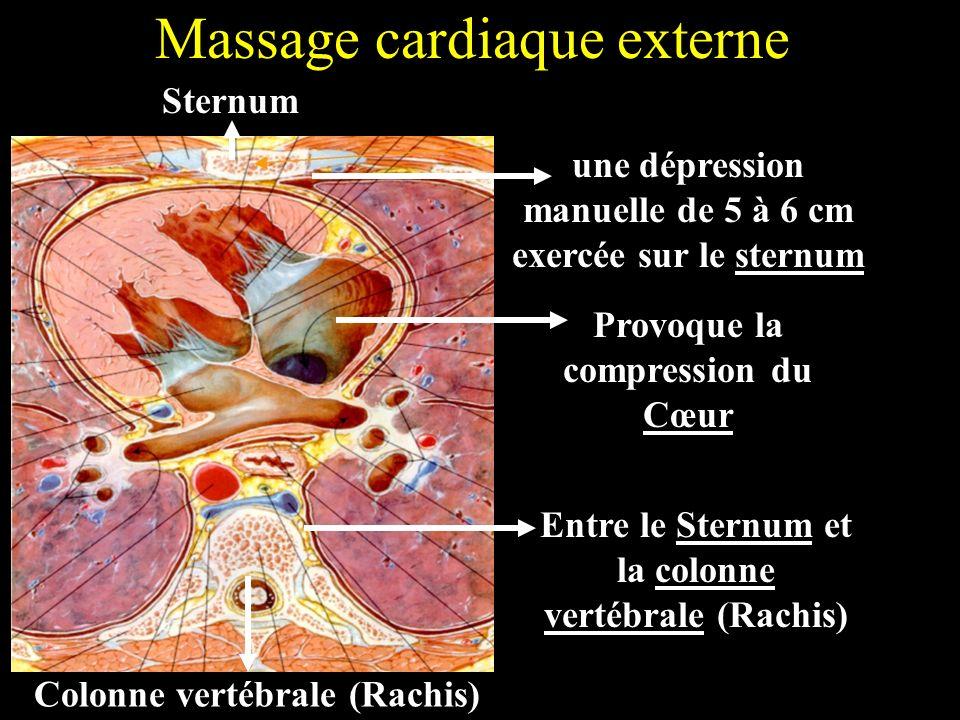 Massage cardiaque externe