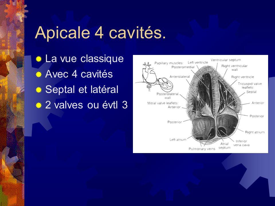 Apicale 4 cavités. La vue classique Avec 4 cavités Septal et latéral