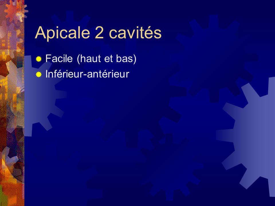Apicale 2 cavités Facile (haut et bas) Inférieur-antérieur