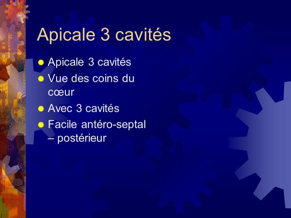 Apicale 3 cavités Apicale 3 cavités Vue des coins du cœur