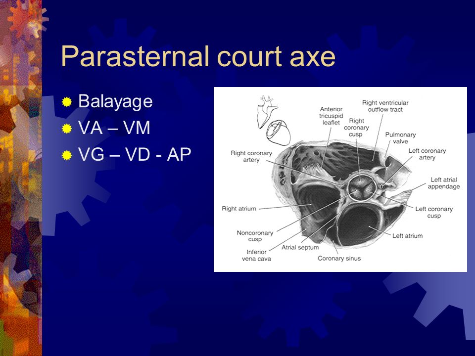 Parasternal court axe Balayage VA – VM VG – VD - AP