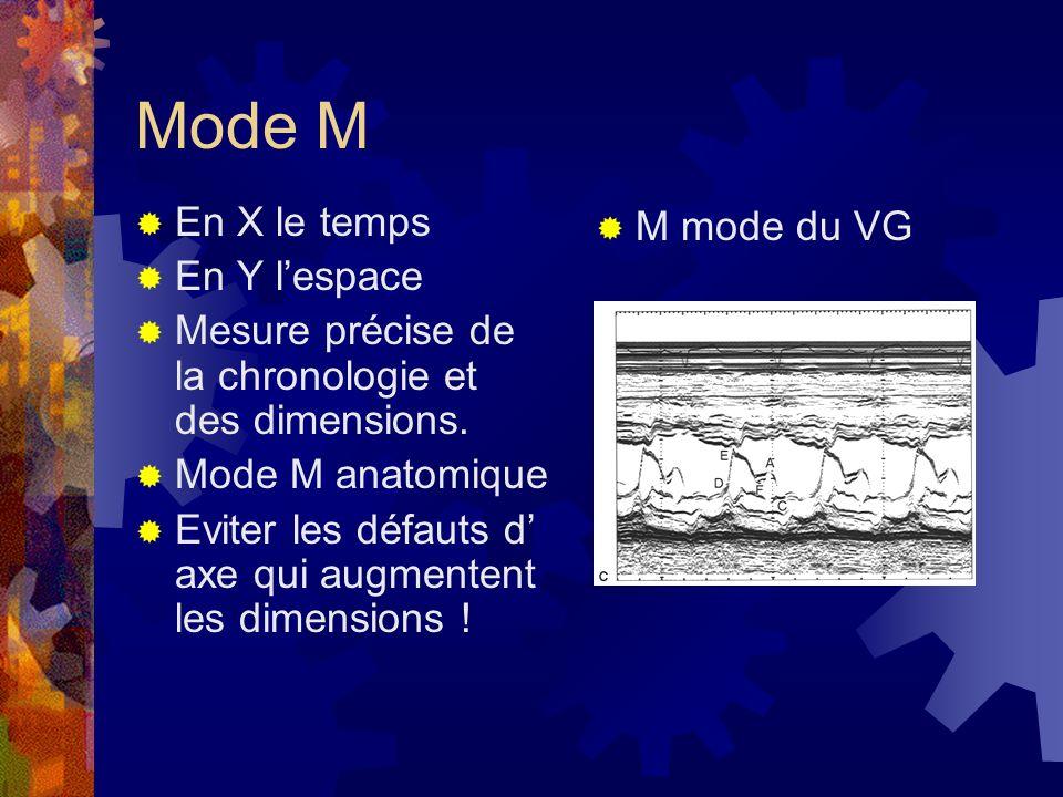 Mode M En X le temps En Y l'espace