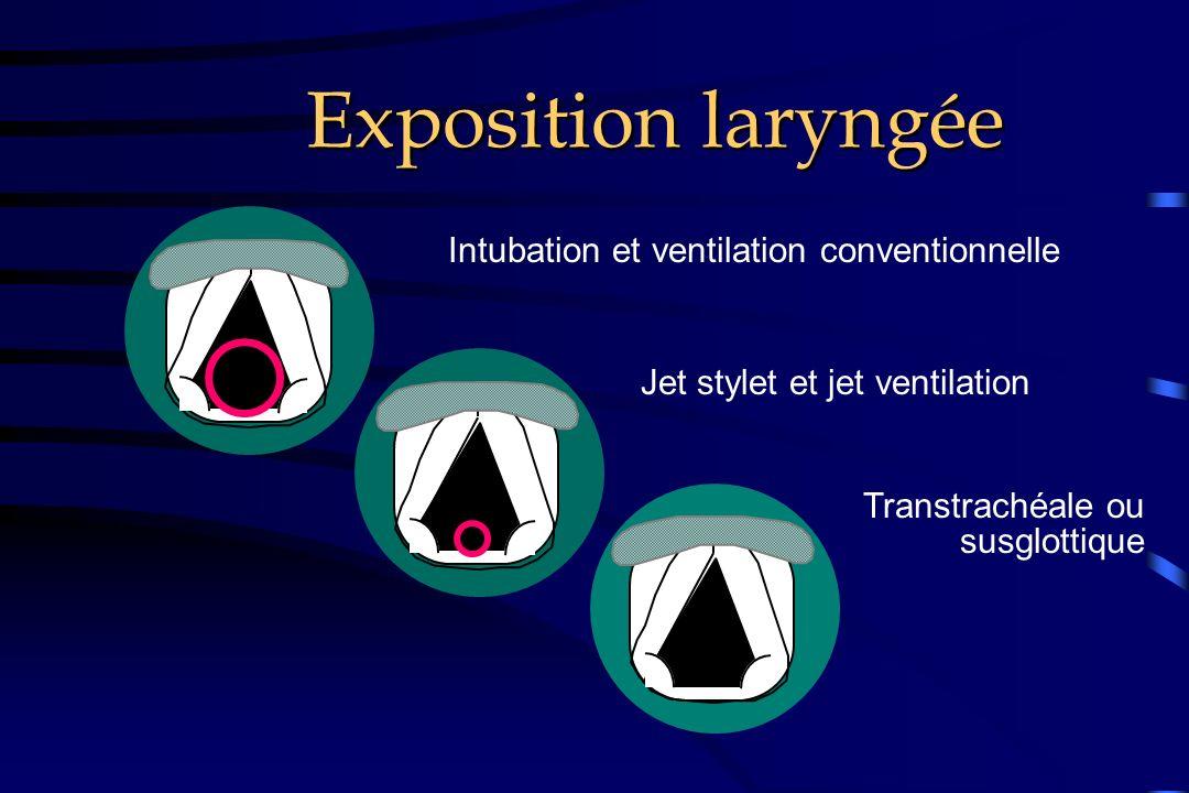 Exposition laryngée Intubation et ventilation conventionnelle