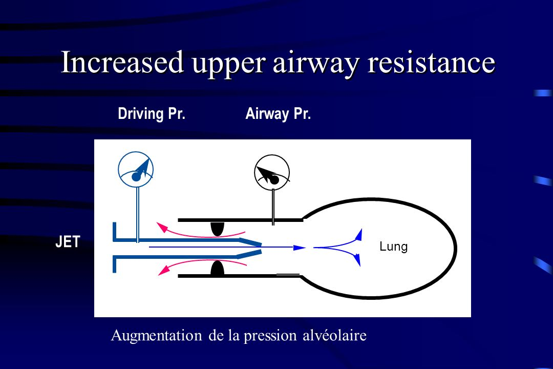 Increased upper airway resistance