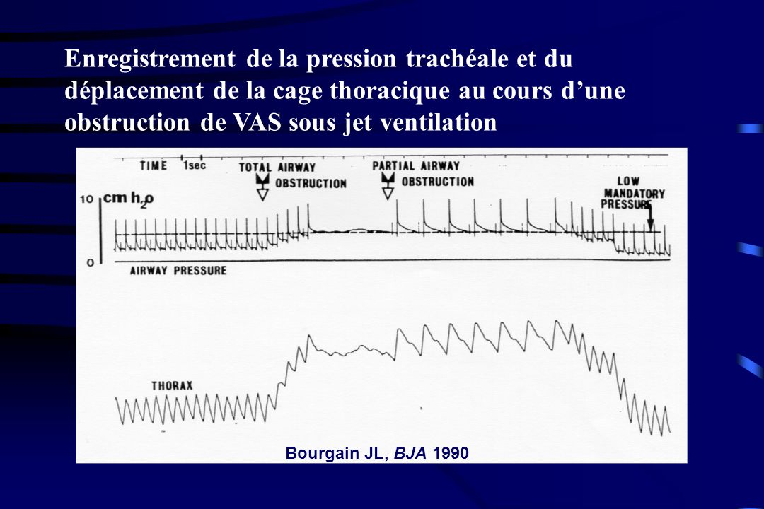 Enregistrement de la pression trachéale et du déplacement de la cage thoracique au cours d'une obstruction de VAS sous jet ventilation