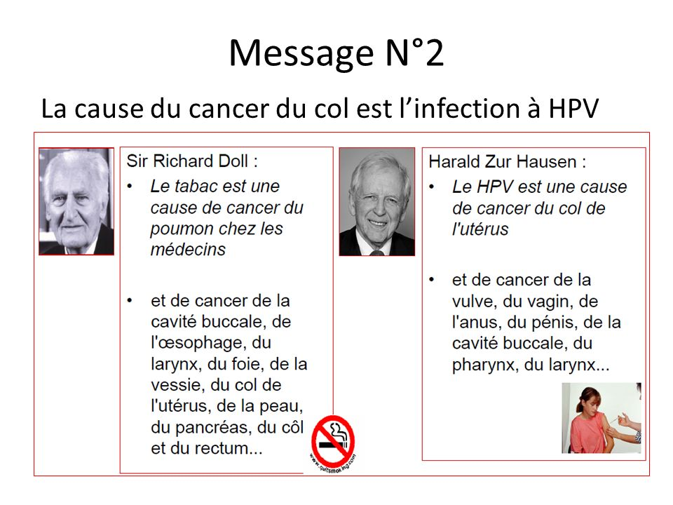 Message N°2 La cause du cancer du col est l'infection à HPV