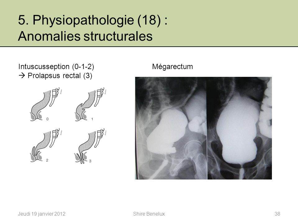5. Physiopathologie (18) : Anomalies structurales