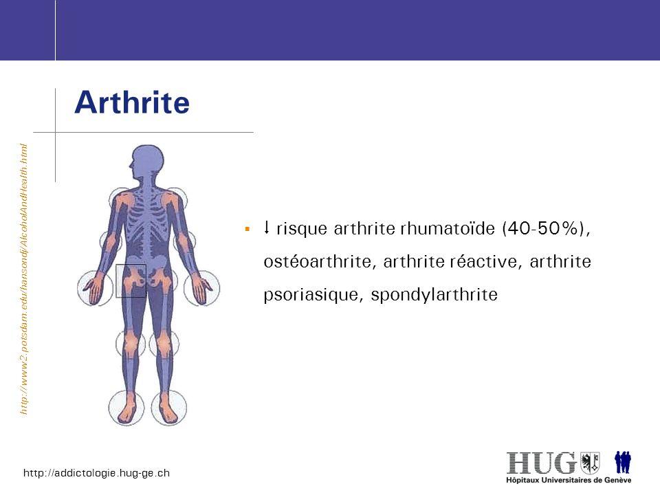 Arthrite risque arthrite rhumatoïde (40-50%), ostéoarthrite, arthrite réactive, arthrite psoriasique, spondylarthrite.