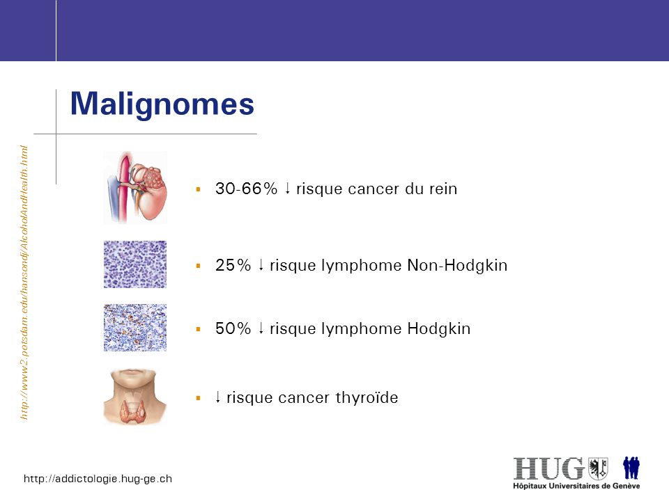 Malignomes 30-66%  risque cancer du rein