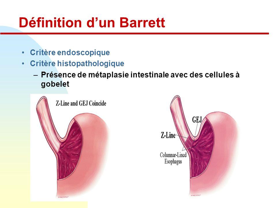 Définition d'un Barrett