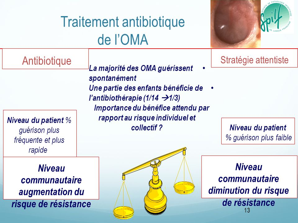 Traitement antibiotique de l'OMA