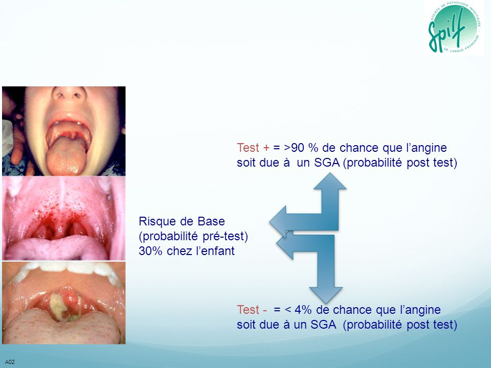 Test + = >90 % de chance que l'angine