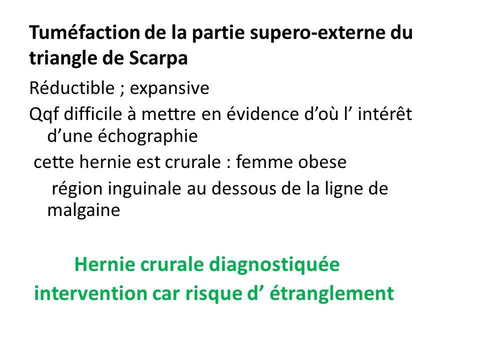 Tuméfaction de la partie supero-externe du triangle de Scarpa