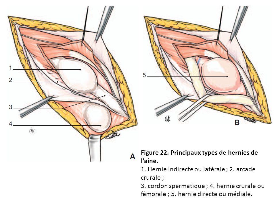 Figure 22. Principaux types de hernies de l'aine.
