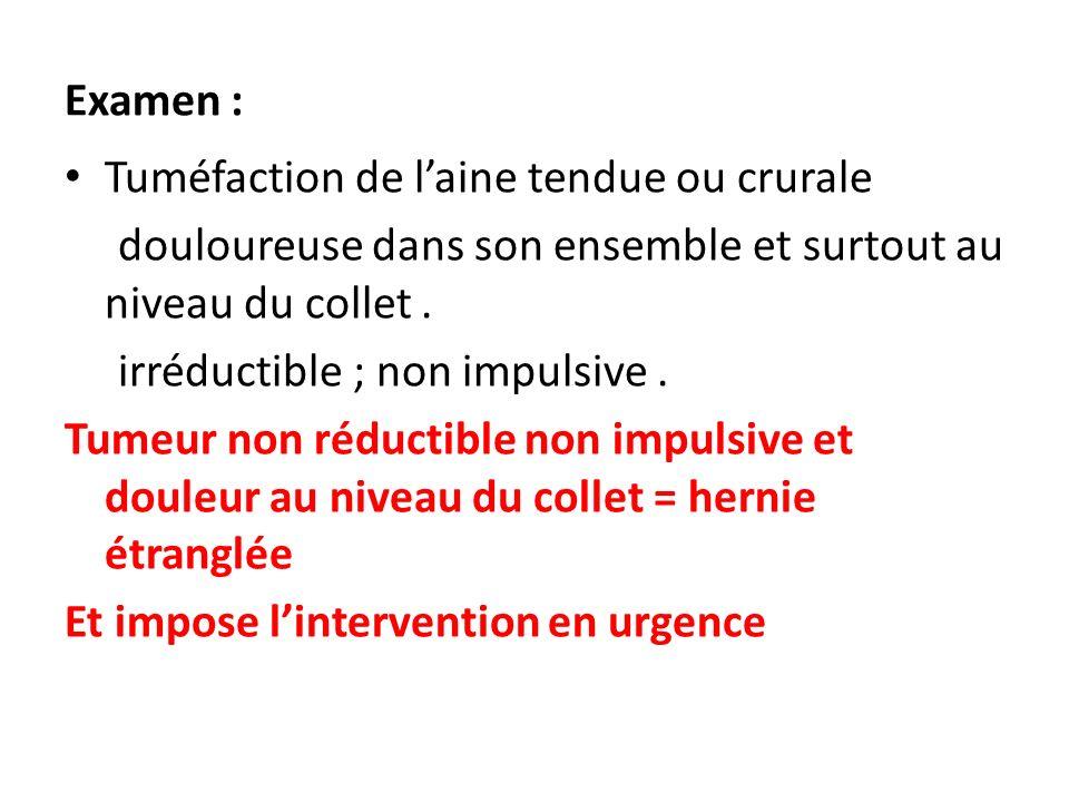 Examen : Tuméfaction de l'aine tendue ou crurale. douloureuse dans son ensemble et surtout au niveau du collet .