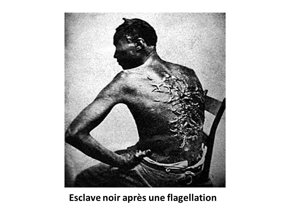 Esclave noir après une flagellation