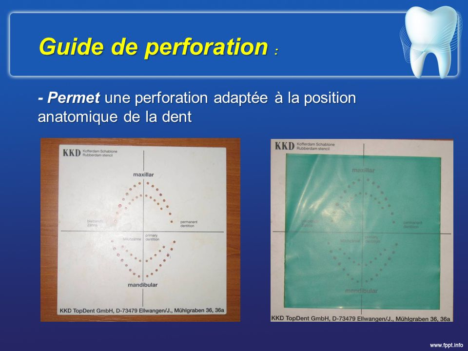 Guide de perforation : - Permet une perforation adaptée à la position anatomique de la dent