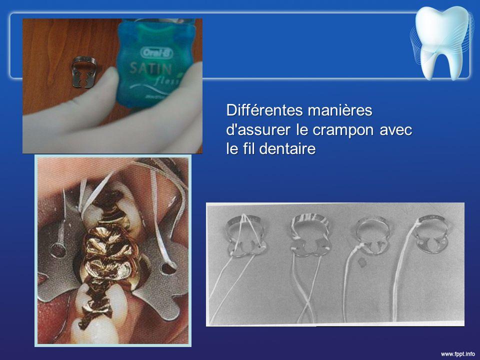 Différentes manières d assurer le crampon avec le fil dentaire