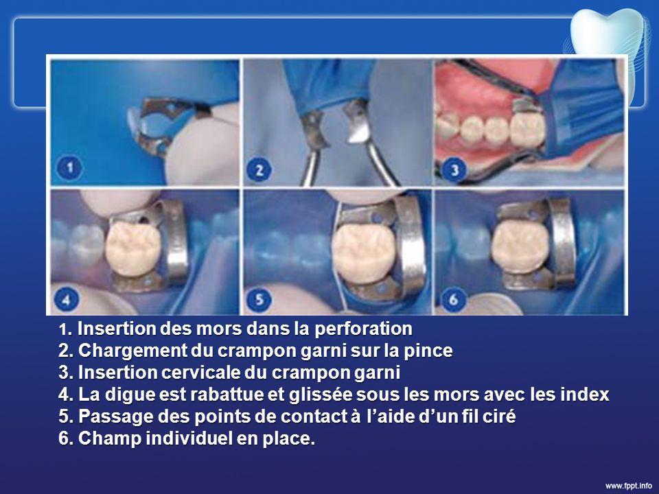 2. Chargement du crampon garni sur la pince