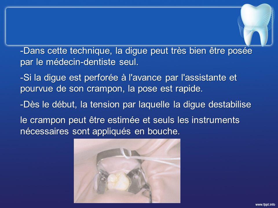 -Dans cette technique, la digue peut très bien être posée par le médecin-dentiste seul.