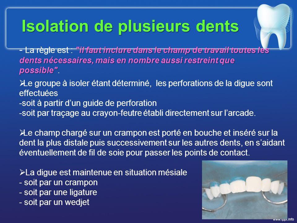 Isolation de plusieurs dents