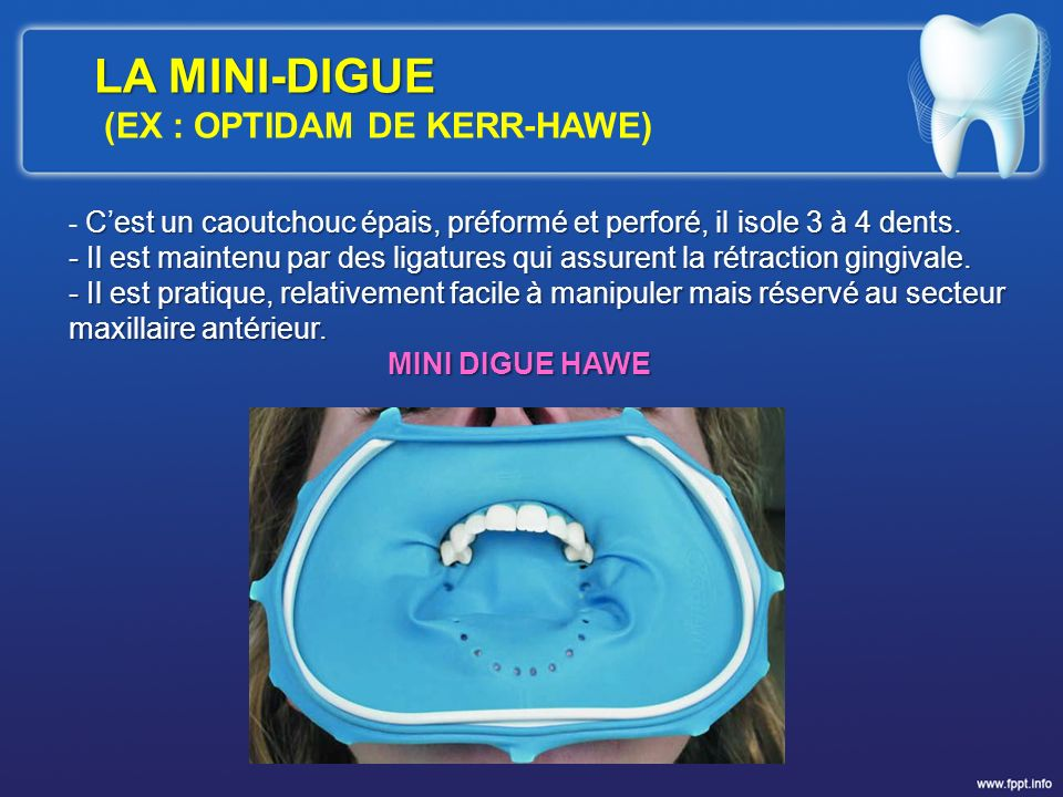 LA MINI-DIGUE (EX : OPTIDAM DE KERR-HAWE)