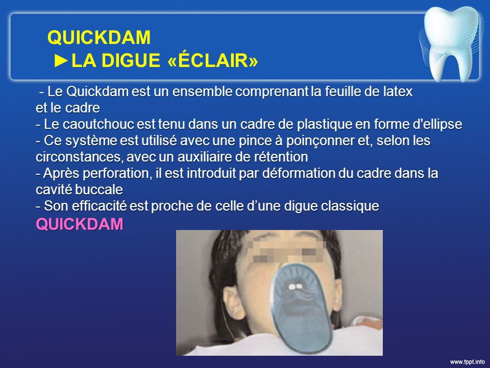 QUICKDAM ►LA DIGUE «ÉCLAIR» QUICKDAM