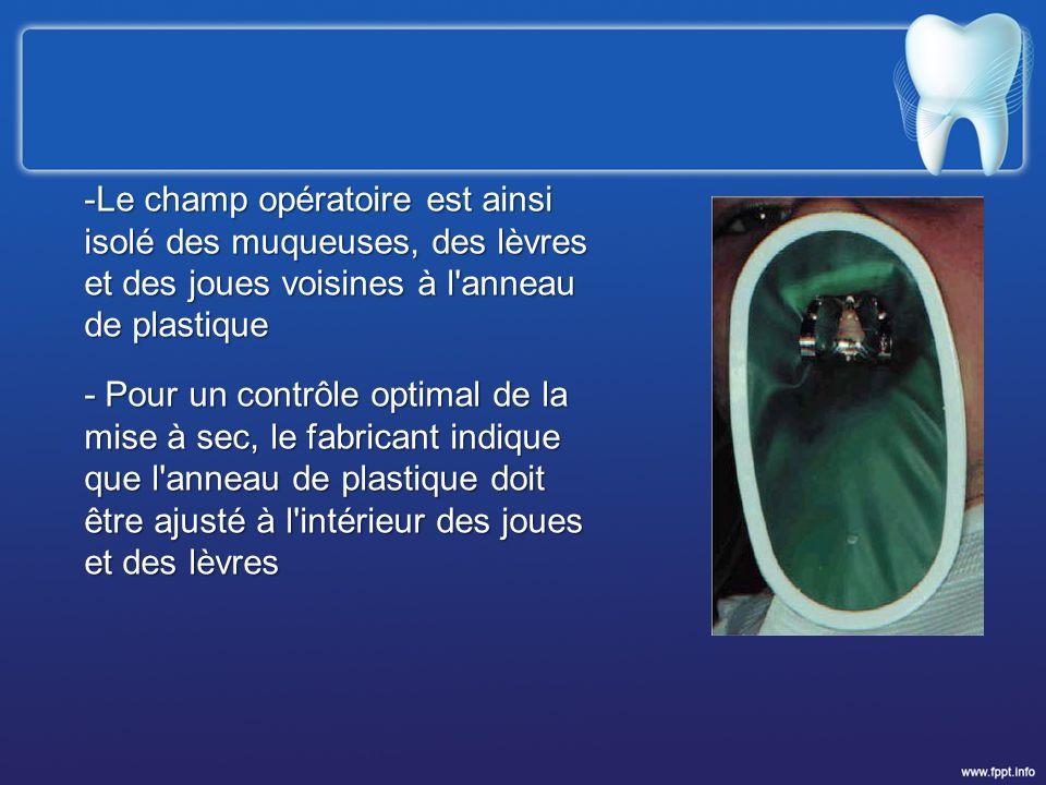 Le champ opératoire est ainsi isolé des muqueuses, des lèvres et des joues voisines à l anneau de plastique
