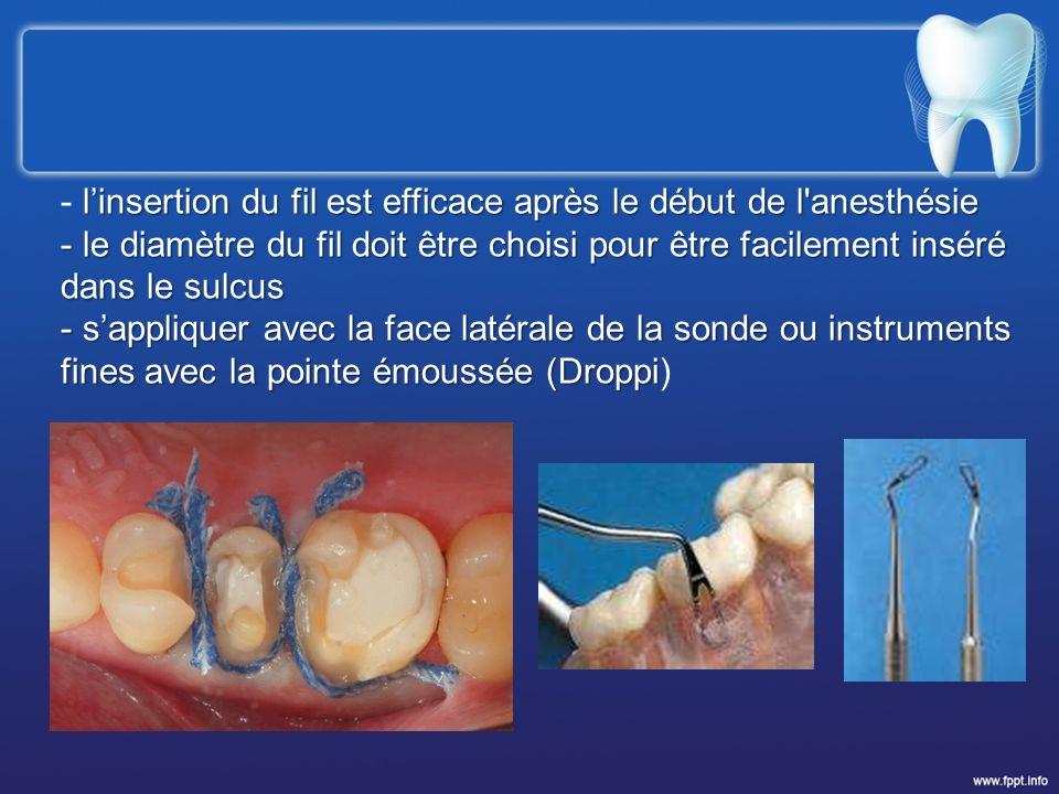 l'insertion du fil est efficace après le début de l anesthésie
