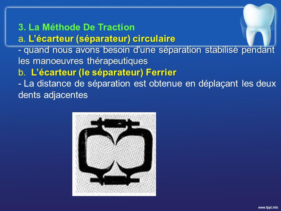 3. La Méthode De Traction a. L'écarteur (séparateur) circulaire.